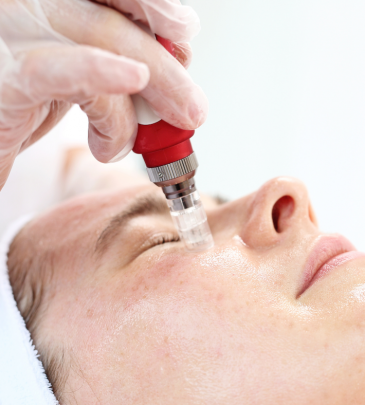 Microneedling and Wound Healing Course